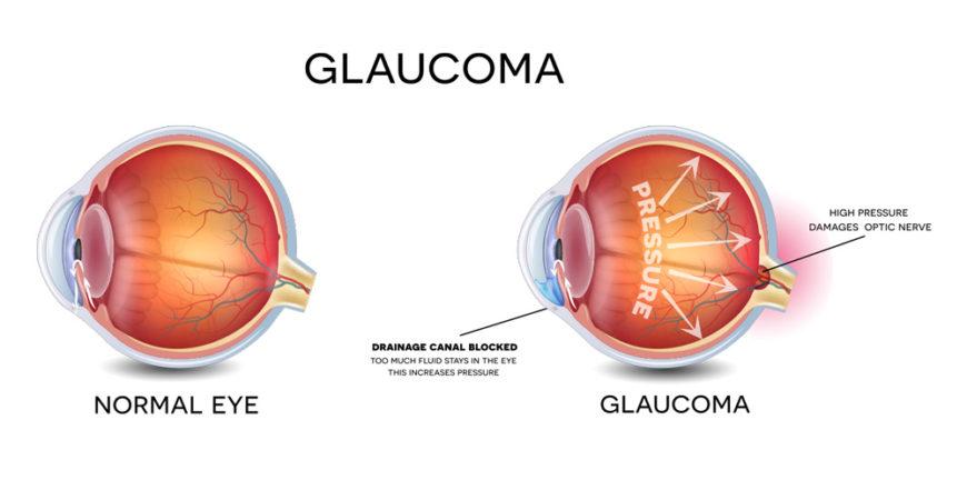 Glaucoma Pediatrico - Astigmatism Glaucoma Swollen Eyes ...